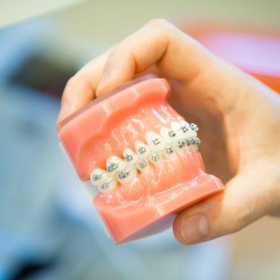Innovative Orthodontics South New Jersey iortho.com 222 400x400 Innovative Orthodontics   Empower Braces