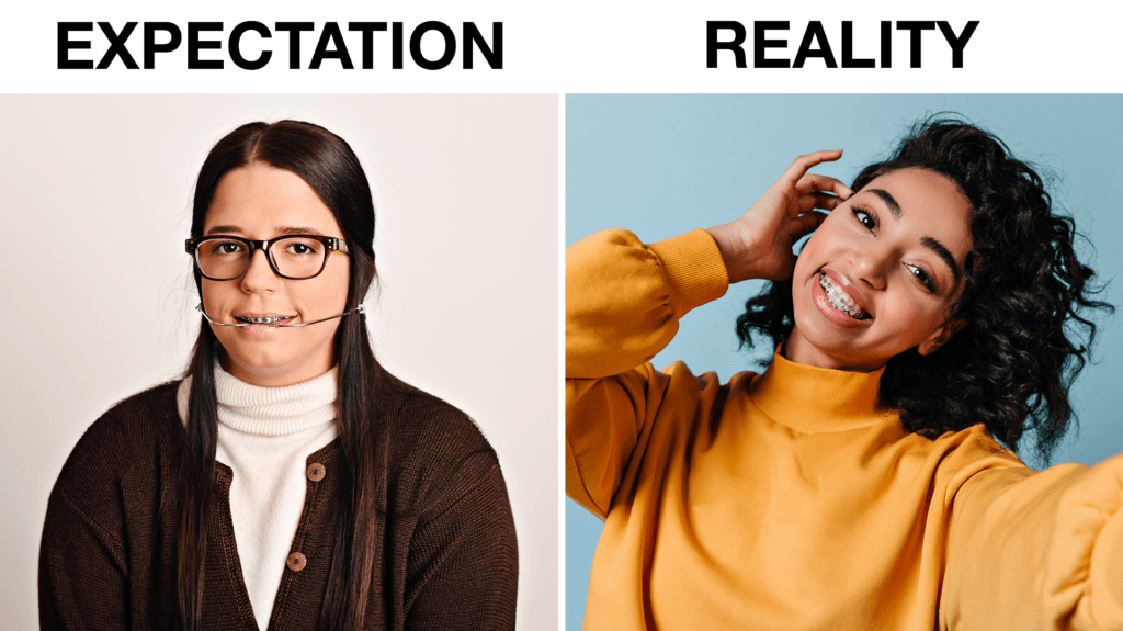 braces-expectation-reality-south-jersey-1024x575 Braces: Expectation vs. Reality